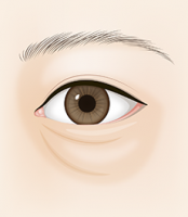 undereye_con03_img01
